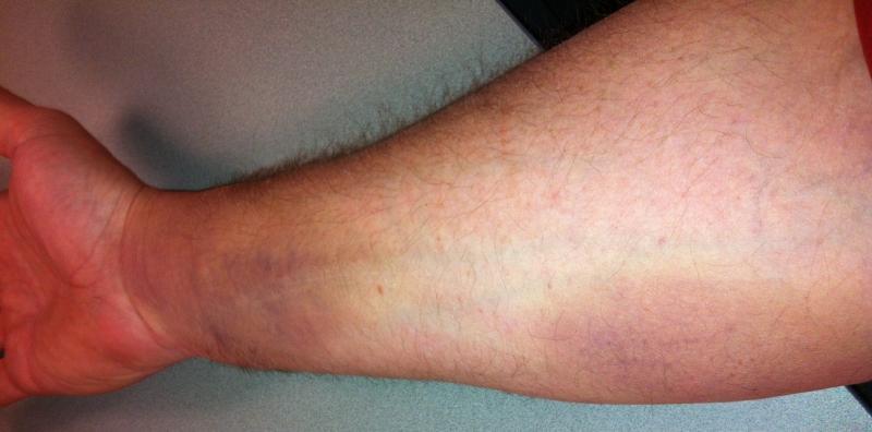 Input On Forearm Tendon Injury Teamtalk